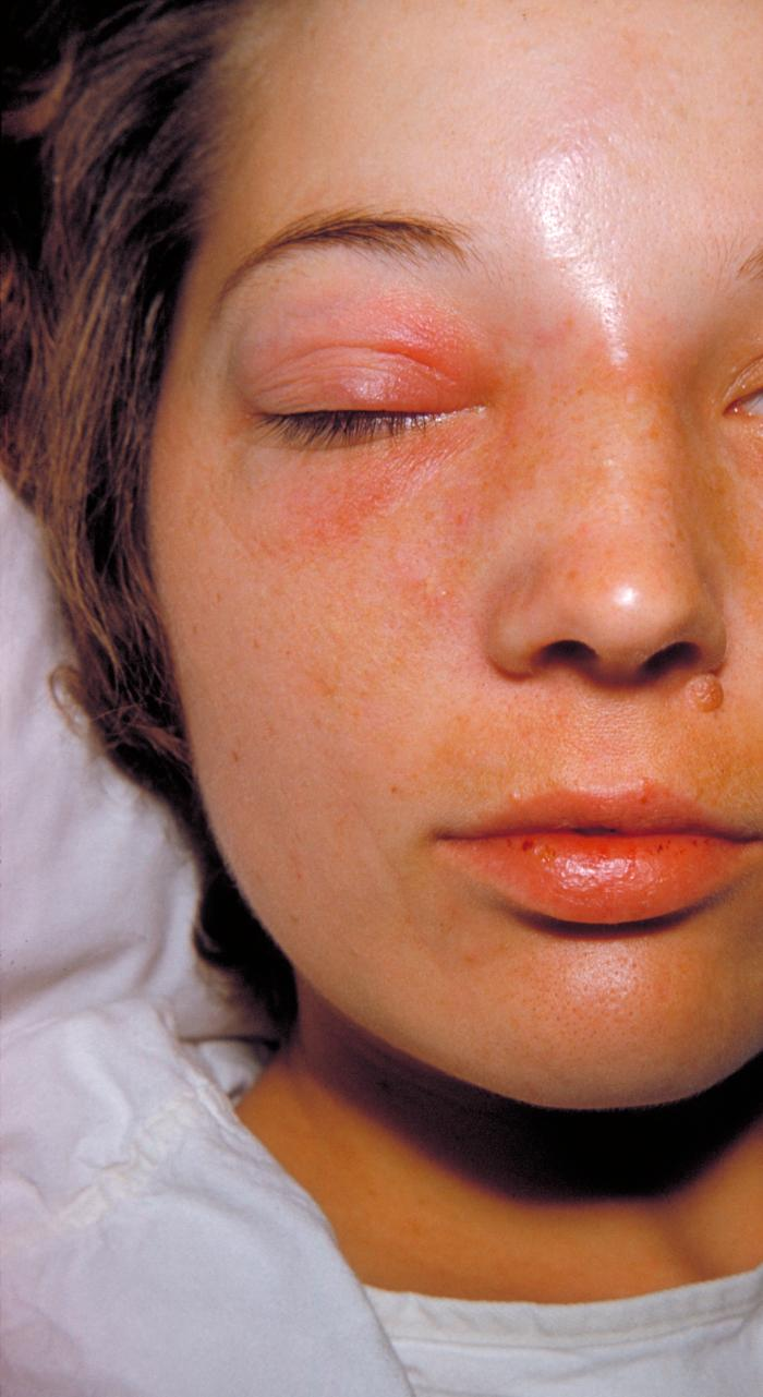 MRSA Methicillin Resistant Staphalococcus - Staph Infection - Cellulitis On Face